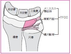 >三角線維軟骨複合体損傷(TFCC損傷)