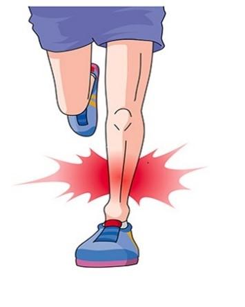 >脛骨疲労骨折・シンスプリント