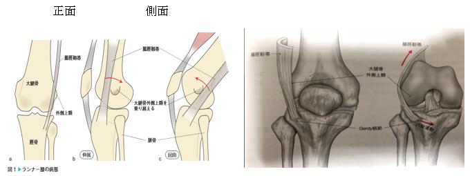 >腸脛靭帯炎