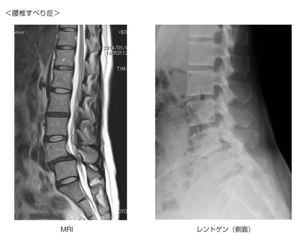 腰部脊椎管狭窄症/すべり症