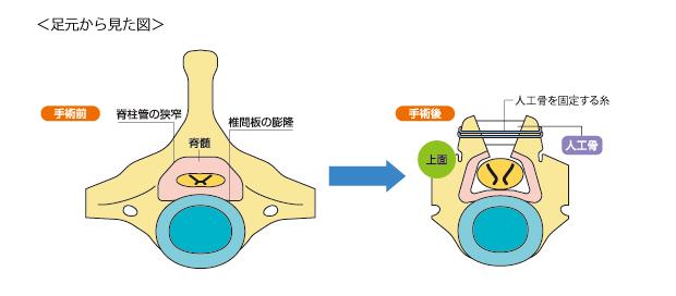 頸部脊椎管狭窄症