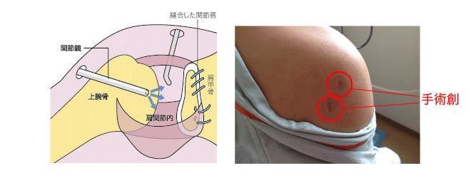 反復性肩関節前方脱臼
