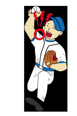 投球障害(肩関節)