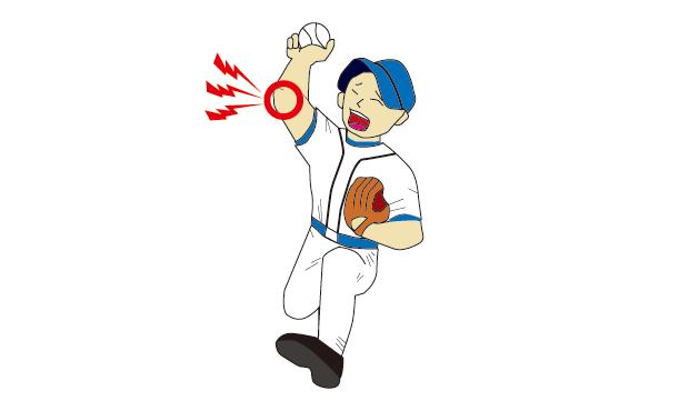 投球障害(肘関節)