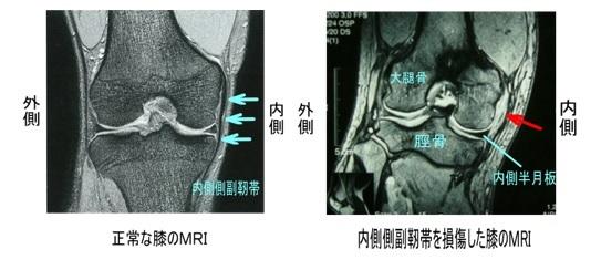 >MCL損傷(内側側副靱帯損傷)