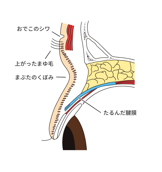 加齢性眼瞼下垂症