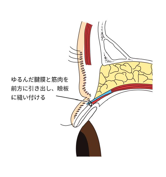 挙筋前転術
