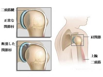>SLAP損傷(上方肩関節唇損傷)